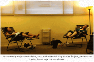 Community Acupuncture: a new trend in oakland